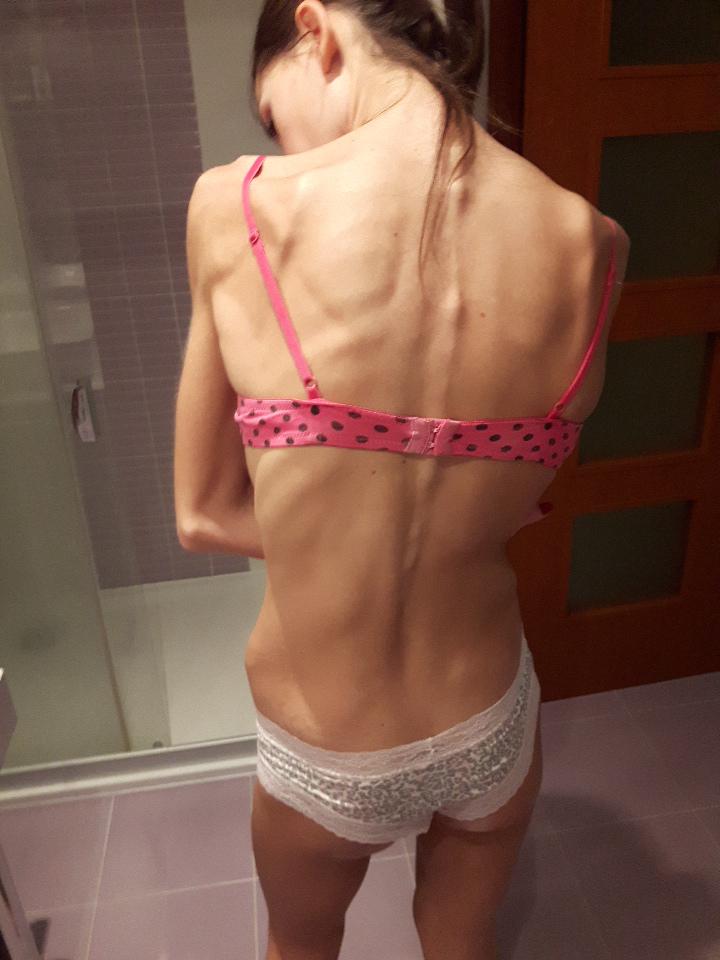 heti anorexiás fogyás fogyás odessa tx